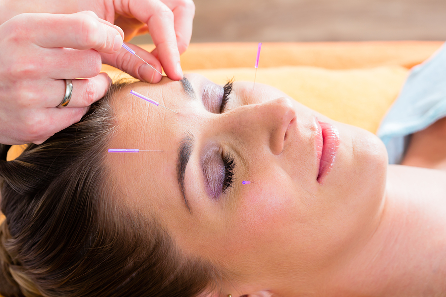 Does Anti Aging Acupuncture Really Work? - LA Acupuncture ...